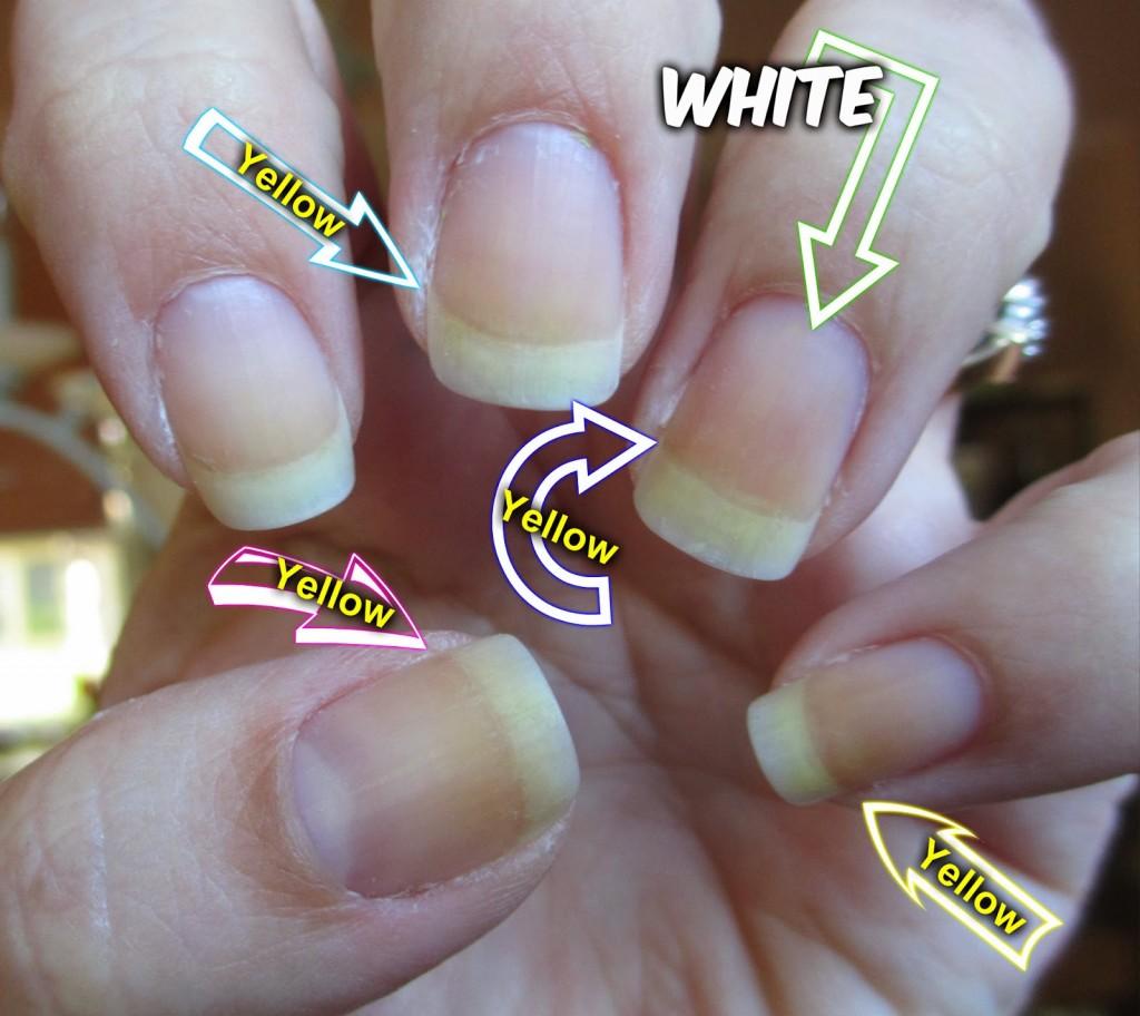 zabarwione paznokcie