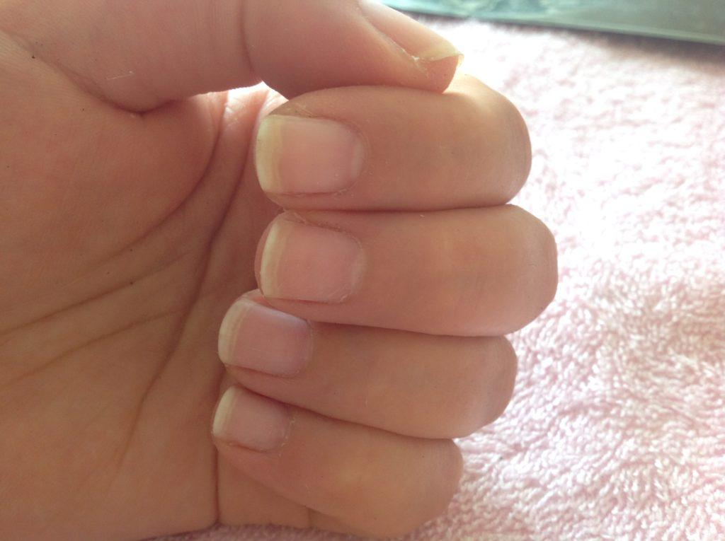 czy lakier hybrydowy niszczy paznokcie